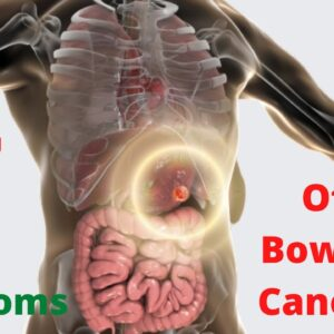 7 Symptoms of Bowel Cancer