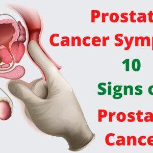 Prostate Cancer Symptoms – 10 Signs of Prostate Cancer