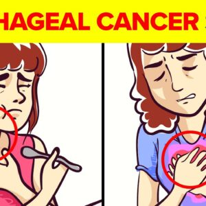 9 Warning Signs & Diagnosis Of Esophageal Cancer