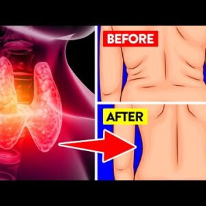 14 Unbeatable Weight Loss Tips While Having Hypothyroidism