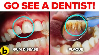 7 Dental Problems You Need To Watch Out For