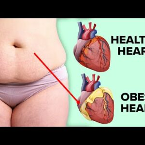 The Dangerous Impacts Of Obesity On Your Body And Health
