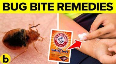 13 Natural Bug Bite Remedies That Work