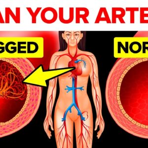 How To Reverse Plaque In Your Arteries