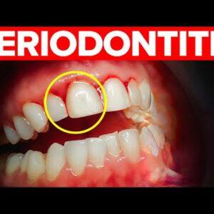 Periodontitis: Stages, Symptoms, Causes & Treatment