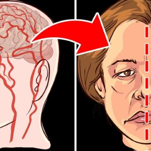 What Happens To Your Body When You Get A Stroke