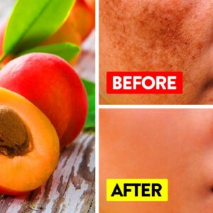 What Happens When You Eat Apricots Every Day   Benefits Of Apricots